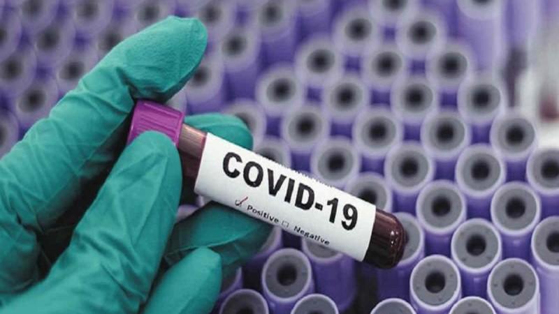 Κορωνοϊός: 1.790 νέα κρούσματα, 371 διασωληνωμένοι, 29 θάνατοι