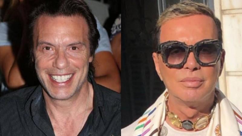 Διάσημοι Έλληνες άντρες που λένε «Ναι» στο μπότοξ