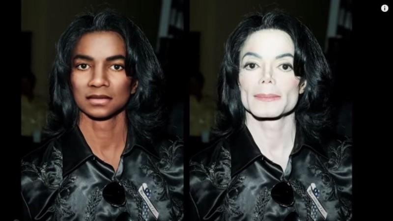 Michael Jackson: Χωρίς Πλαστικές επεμβάσεις