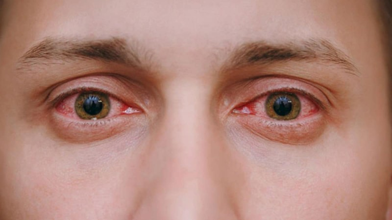 SOS: Μπήκε καπνός από φωτιά στα μάτια σου; Τα 4 βήματα που πρέπει να ακολουθήσεις