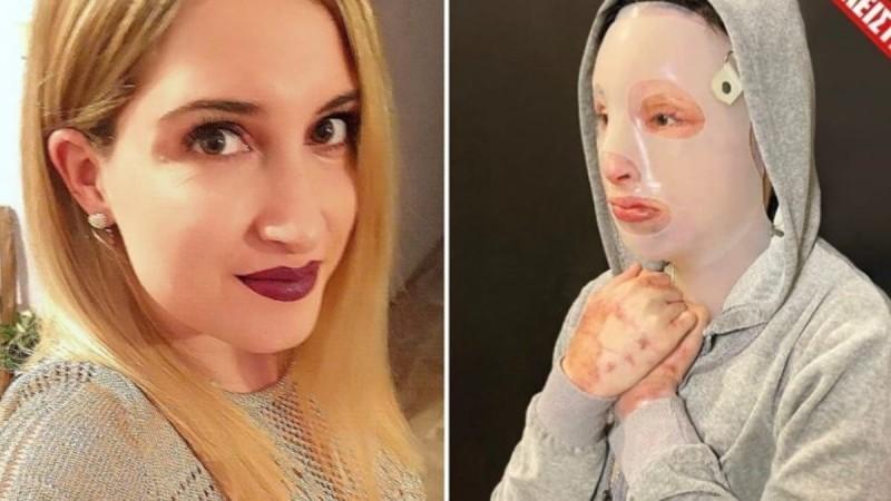 Επίθεση με βιτριόλι: Στο 1,5 μέτρο απόσταση η Ιωάννα από την 36χρονη